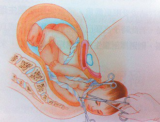 苗栗縣林姓產婦上月底臨盆,胎兒出生時臍帶繞頸4圈,搶救後無礙,圖為臍帶繞頸示意圖...