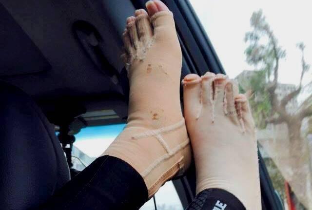 過年出遊,伃均拍下自己穿著壓力衣的雙腳。 鄭伃均提供。