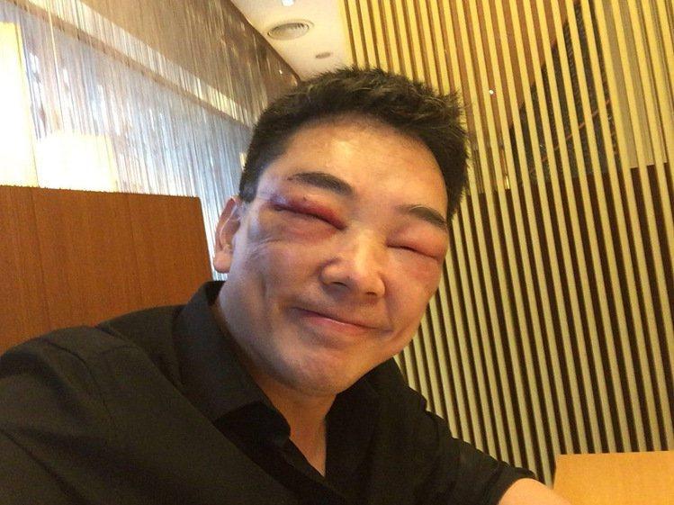 詹惟中先前植眉,因為麻藥打太多變得臉腫。圖/詹惟中提供