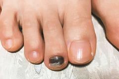 鞋子不合腳 慢跑跑出「黑趾甲」