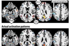 讀心術不是夢 測量大腦活動就知想什麼