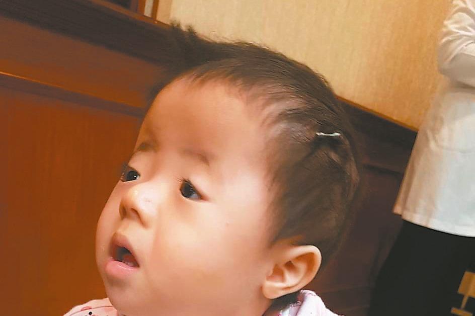 一歲娃頭形像辛普森 手術後正常