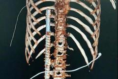 鋼筋從22歲男臀部「筆直貫穿」差3公分就刺到心臟
