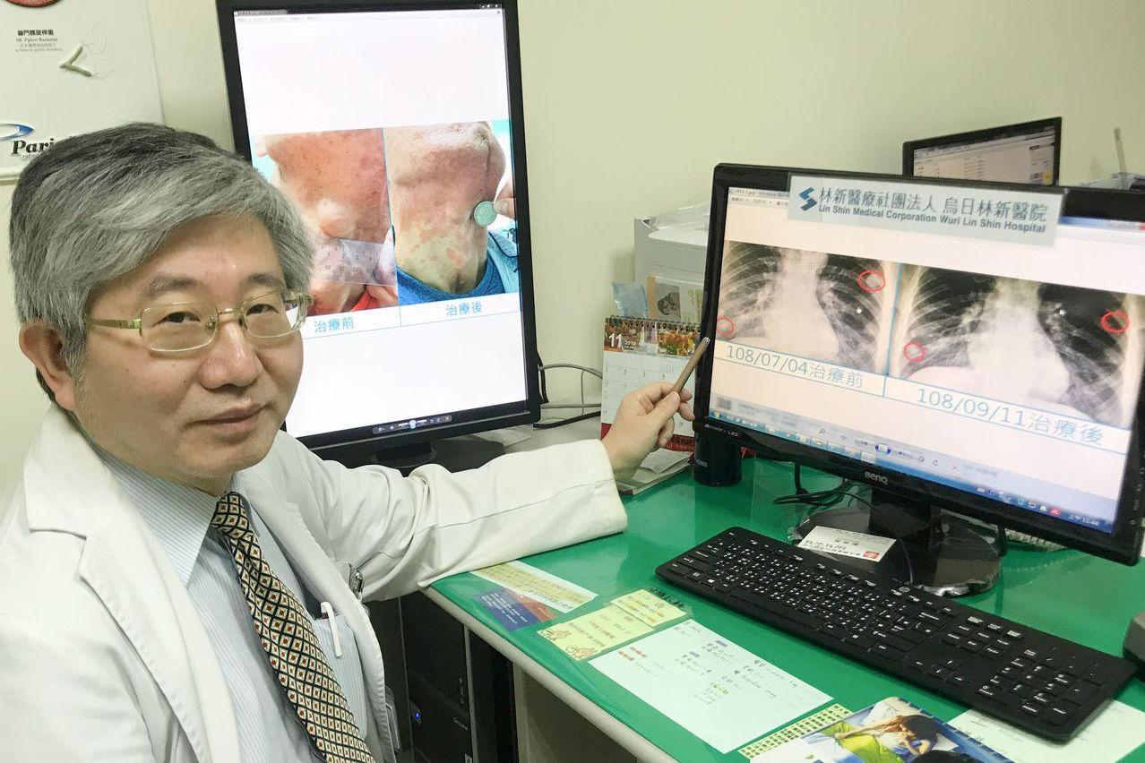 48歲工程師罹罕癌 積極抗癌精準治療讓他找到喉結了