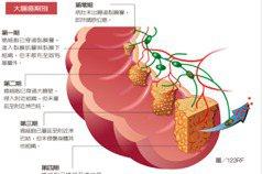 大腸癌治療要開腹還是腹腔鏡? 取決期別與腫瘤型態
