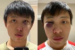 「你的病毒不要進入我的國家」 新加坡青年倫敦街頭被圍毆