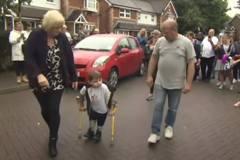 遭父母虐待雙腿截肢 英5歲童撐拐杖健行為醫院籌得4千萬
