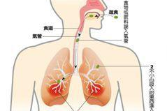 老年人潛在的隱性殺手「吸入性肺炎」 4類型病人為高危險群!