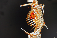 2鋼筋插身 又見肝癌 手術救回