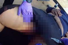 新竹24歲工人遭鋼筋刺穿下體 「寶貝」差點整組扯下來
