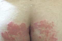 健保皮膚病就醫指南4/地板太潮濕 愛乾淨也難逃香港腳
