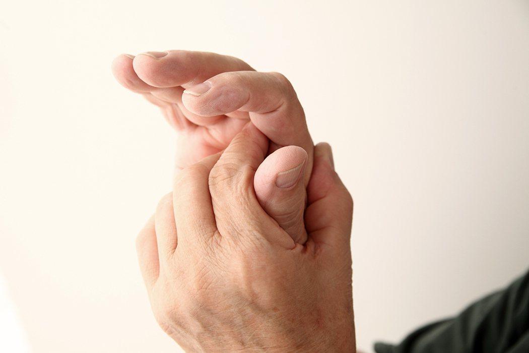 10根手指關節都會痛,怎麼辦? 圖片/ingimage