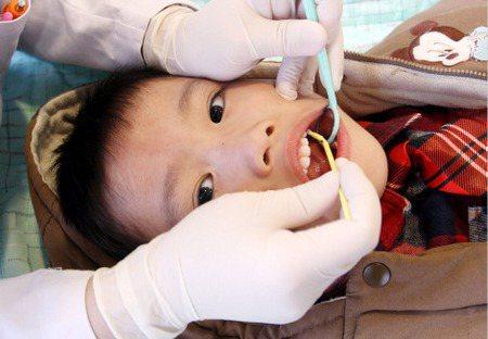 防止蛀牙齲齒,有必要喝加了氟的水嗎?