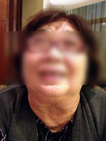 碘攝取不足,常會造成俗稱「大脖子」的甲狀腺腫大。 記者張耀懋/攝影