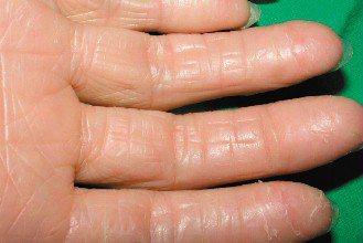 圖2:富貴手慢性期:橫向及縱向的溝紋,蠟狀發亮,指紋消失。(圖片提供/林政賢醫師...
