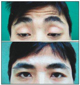 莊姓男子手術前要用力張開眼睛,額頭都擠出抬頭紋,還只能張開一條隙縫,看起來無精打...