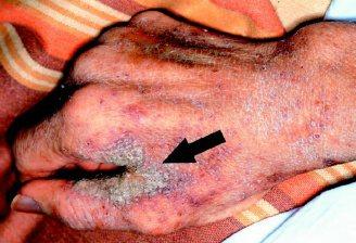 病人的手指縫蓋著厚厚的皮屑(箭頭處),容易將疥瘡傳給所有照顧他的醫師與護士。(圖...