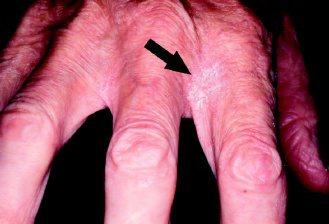 病情較輕,只於指縫出現許多皮屑(箭頭處)的挪威疥病人。(圖片提供/林仲醫師)
