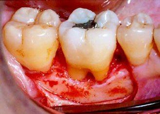 過去清除牙周囊袋內深部結石,只有傳統手術一途。(圖片提供/李德孚醫師)