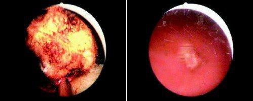左:銩雷射之攝護腺汽化切割過程。右:經切割後,掉落於膀胱中的組織。(記者陳立凱/...