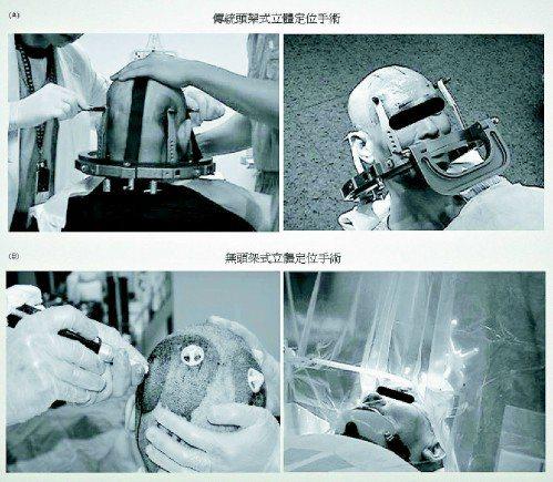 傳統手術:傳統有框架深腦刺激術,手術之前,病人得戴上重達三公斤的鐵盔,相當不便。...