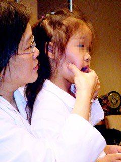 小朋友顳顎關節發炎,可用溫敷、按摩緩解症狀,在顳顎關節部位輕輕往下按壓即可。(記...