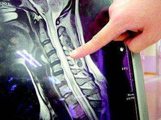 署立台中醫院發現一例手術後全身疼痛,卻與傷口無關的病例,經電腦斷層發現患者脊髓因...