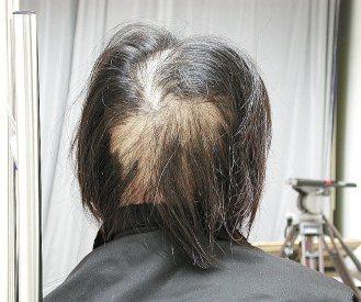 營養失衡,可能出現嚴重掉髮現象。(聯合報系資料照片)