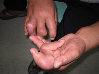 痛風病患的手指關節腫脹變形,猶如生薑。(聯合報系資料照片)