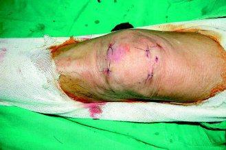 署立台南醫院骨科主任楊哲忠自創的膝骨折固定術,不必切開,表皮上只看到4處小孔。(...