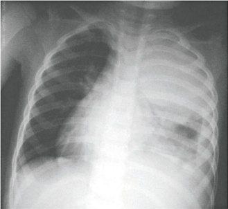 大葉性肺炎,患者清澈的肺葉變成一片白霧,還合併膿胸症狀。(照片提供/李秉穎醫師)