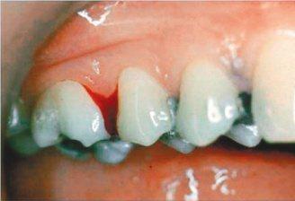 根據統計,國內40歲以上成人9成有牙周病,即使是看似健康的牙齦,若經牙周探針檢查...