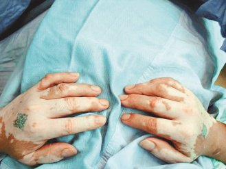 手掌白斑症很嚴重,好像戴著白手套。(圖/光田醫院提供)