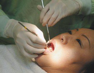多數人有牙周病卻不自知,未能及時就醫治療。(記者盧振昇/攝影)