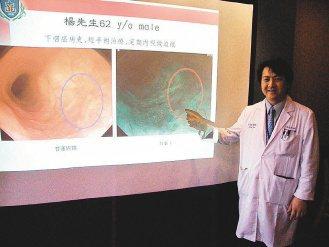 透過「窄頻影像系統」(NBI)所發出的藍綠色光線照射,若有癌變,就會顯現出咖啡色...