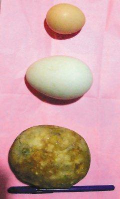 一中年男子的膀胱結石(前),比鵝蛋(中)及雞蛋大很多。(記者林秀美/攝影)