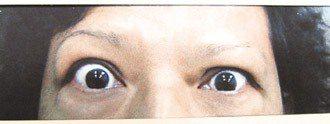 女病患因甲狀腺機能亢進,眼球凸出如瞪人。(記者彭芸芳/翻攝)