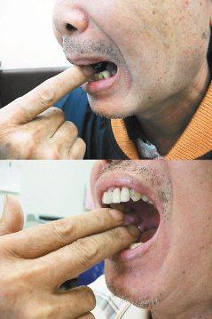 到高雄長庚求診的59歲男子,原本只能張口一指寬,治療後顳頜關節活動度提高,不再疼...