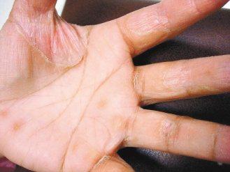 手指側面刺癢,產生水泡,甚至脫皮、疼痛,夏天更嚴重,皮膚乾裂疼痛,是汗皰疹的症狀...