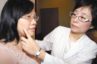 雙和醫院皮膚科主任李婉若(右)為滿臉青春痘的詹小姐,使用雷射磨皮及高壓氧治療後,...