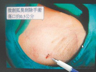微創狐臭刮除手術,傷口小,可解決狐臭問題。 圖/童綜合醫院提供
