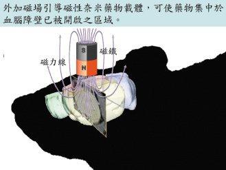 2注入磁性奈米藥物,並將強力碰鐵放在腦瘤病灶附近,吸引藥物進駐。 圖/長庚神經外...