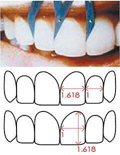 依照審美觀點,單顆牙齒寬度與高度比或牙齒排列若符合黃金比例1:1.618,最為美...