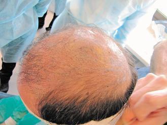 為讓頭髮看起來多一點,有人在頭皮上刺青。等到頭髮越來越少,就顯得怪異,還得雷射清...