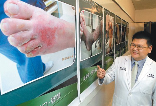 一名婦人因為腳部受傷,自行在藥房買藥膏擦用,加上該名婦人使用布條將腳綑綁包紮,導...