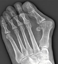大腳趾外翻,X光片下可見第一蹠骨的角度明顯向外傾斜。 照片提供/江昭慶醫師
