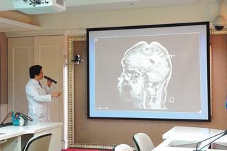 北市萬芳醫院有病患幻想外星人入侵腦部,摳破頭殼(上方紅色處)。 圖/萬芳醫院提供
