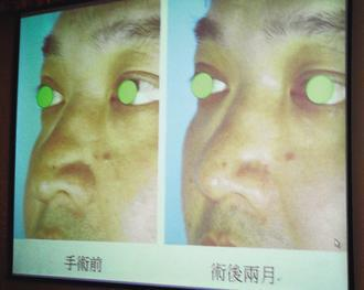徐姓男子因天生鷹勾鼻,加上鼻頭太重導致下垂,容易鼻塞難以呼吸(左)。經手術調整後...