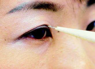 做雙眼皮手術前,應向專業醫師諮詢,根據眼皮的鬆緊程度選擇適合的手術方法。 (圖/...