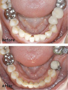牙齒不整齊除了有礙觀瞻,對口腔清潔也造成很大影響。上圖患者下排門牙參差不齊,產生...